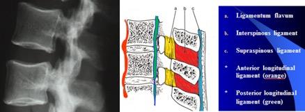 ligament in de wervelzuil