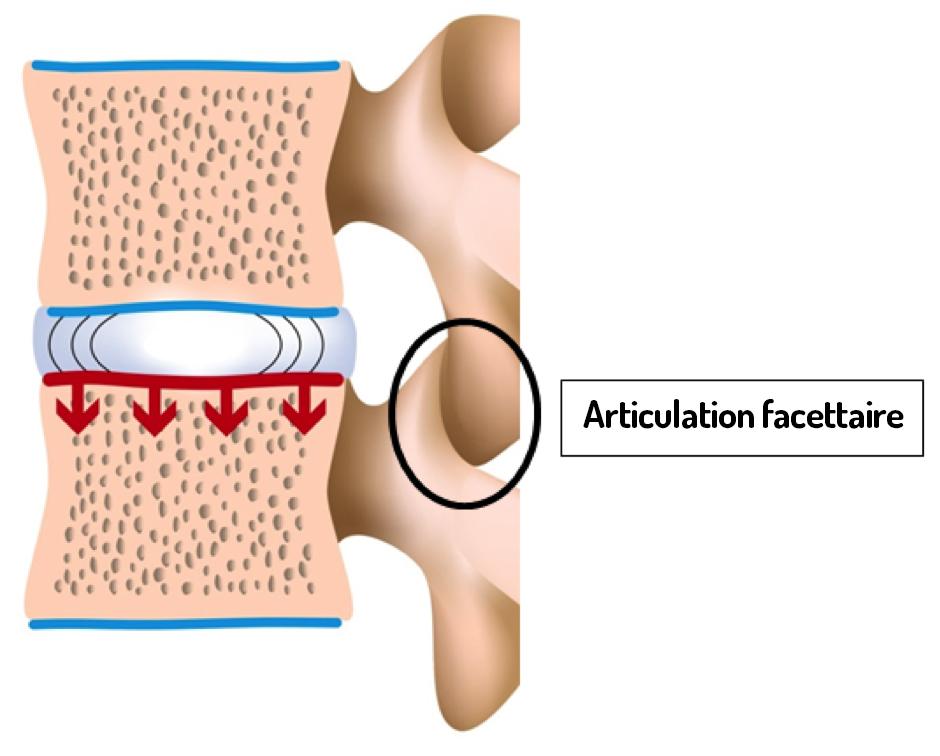 Articulation facettaire