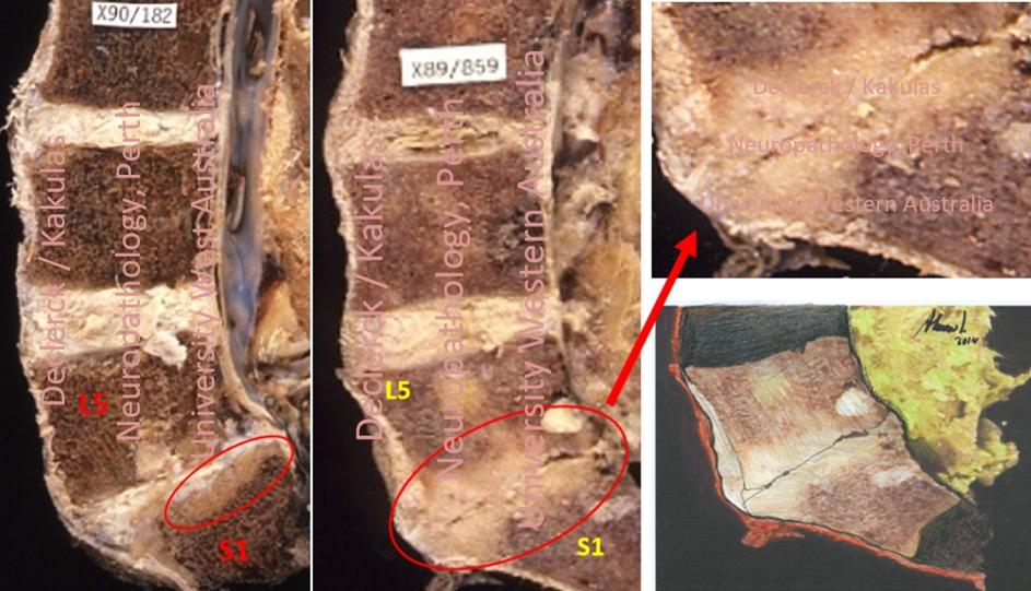 vertebra
